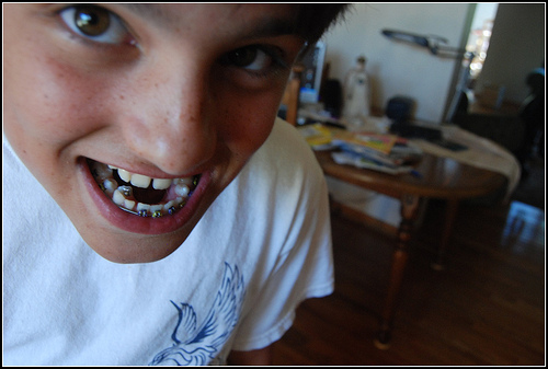 Shark (Tooth) !